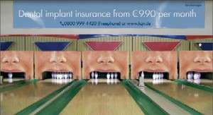 Dental_implant